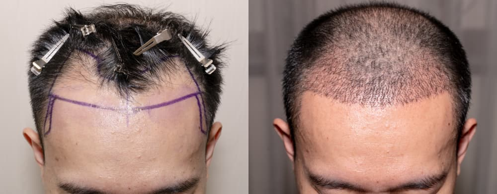 résultat d'une greffe de cheveux