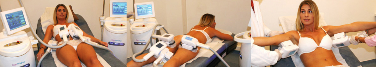 cryotherapie cellulite